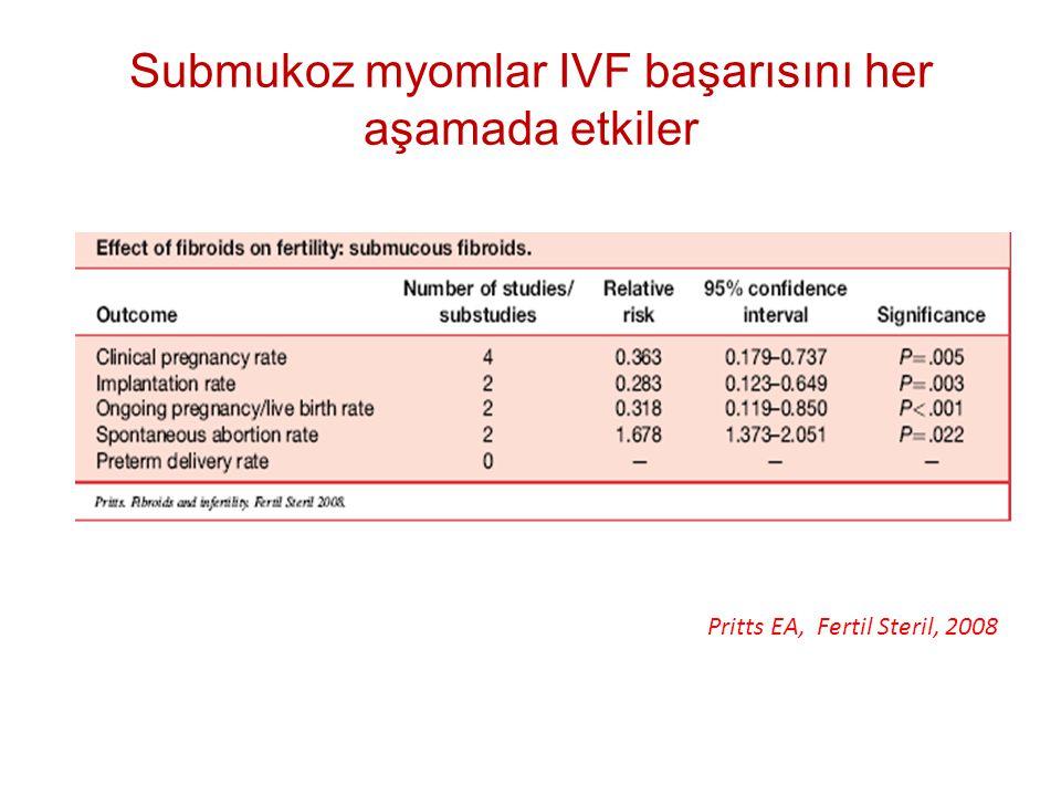 Submukoz myomlar IVF başarısını her aşamada etkiler