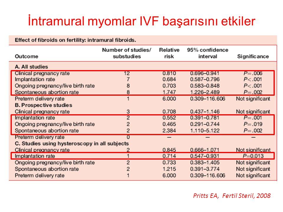 İntramural myomlar IVF başarısını etkiler