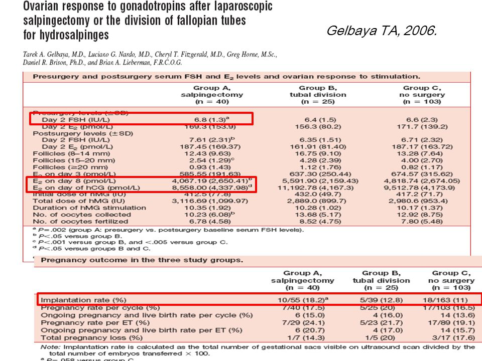 Gelbaya TA, 2006. Laparoscopic salpingectomy—unilateral or bilateral—was performed in 40 patients.