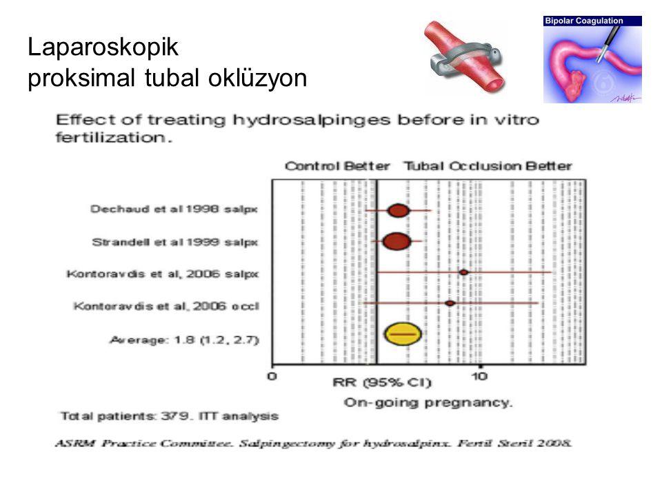 Laparoskopik proksimal tubal oklüzyon