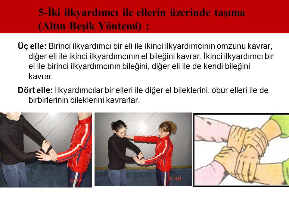 5-İki ilkyardımcı ile ellerin üzerinde taşıma (Altın Beşik Yöntemi) :