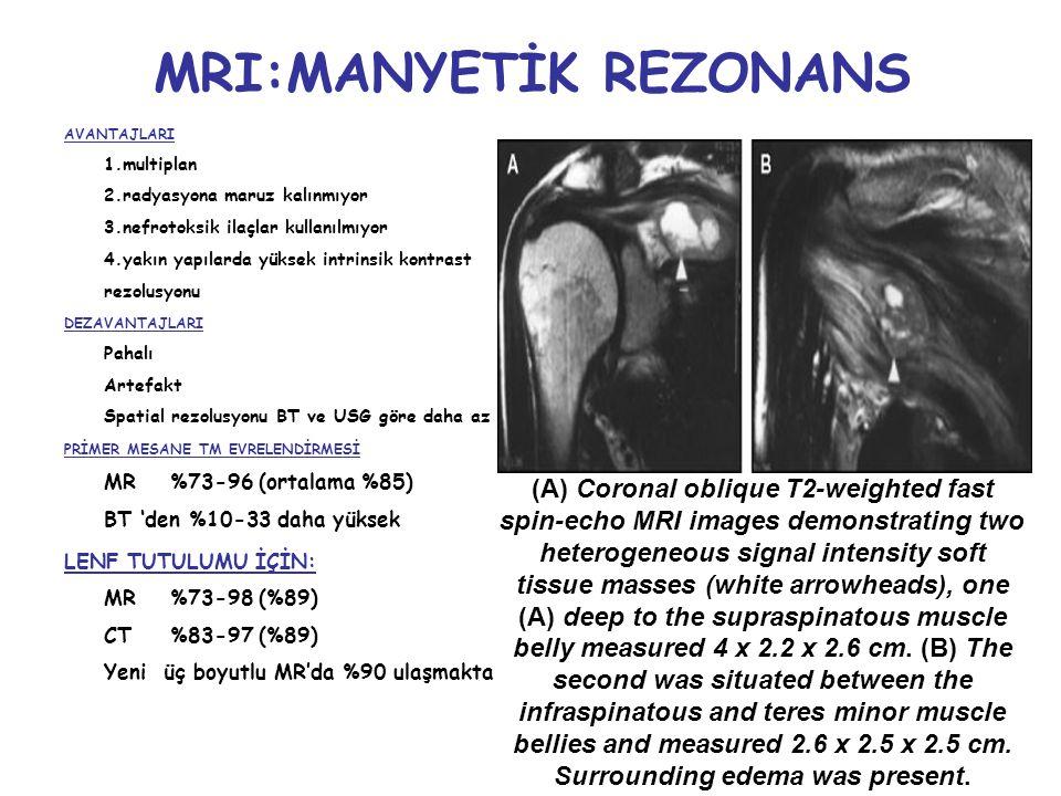 MRI:MANYETİK REZONANS