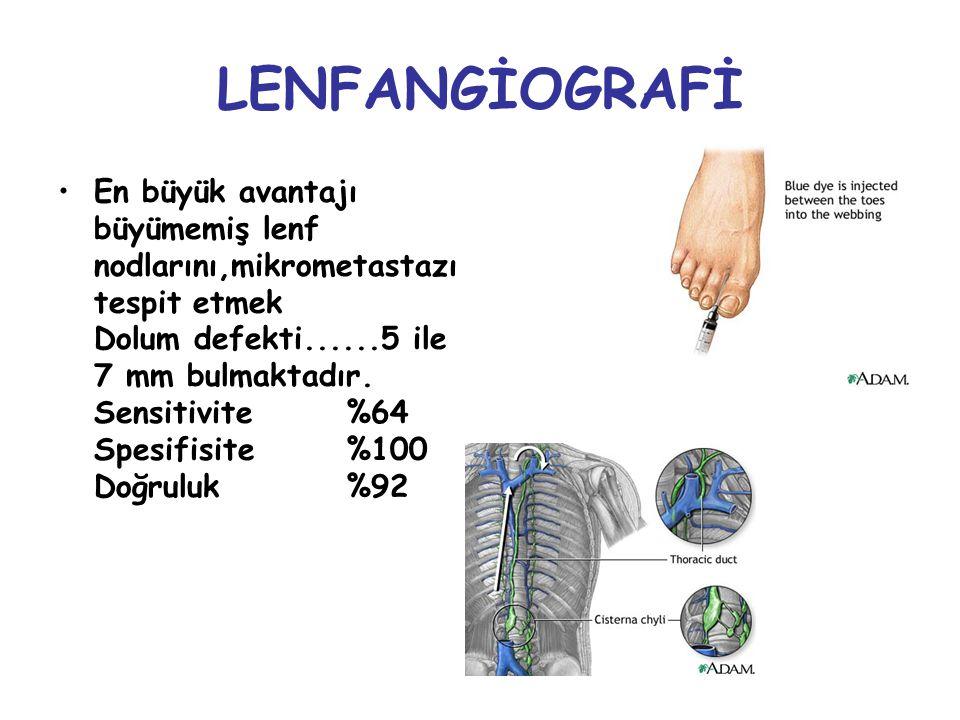 LENFANGİOGRAFİ