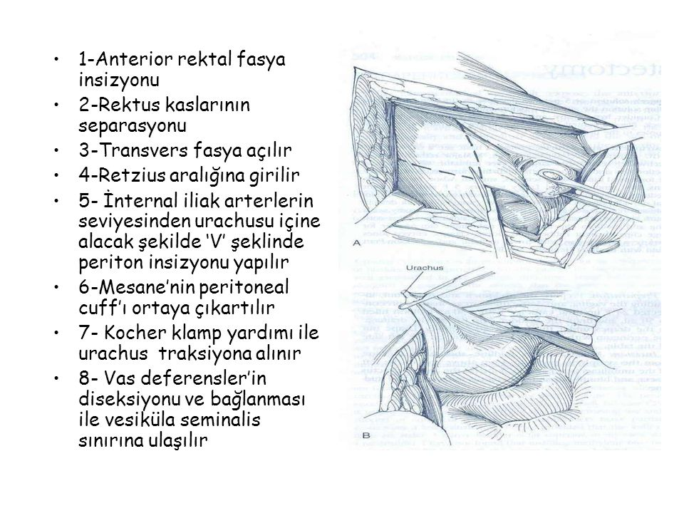 1-Anterior rektal fasya insizyonu