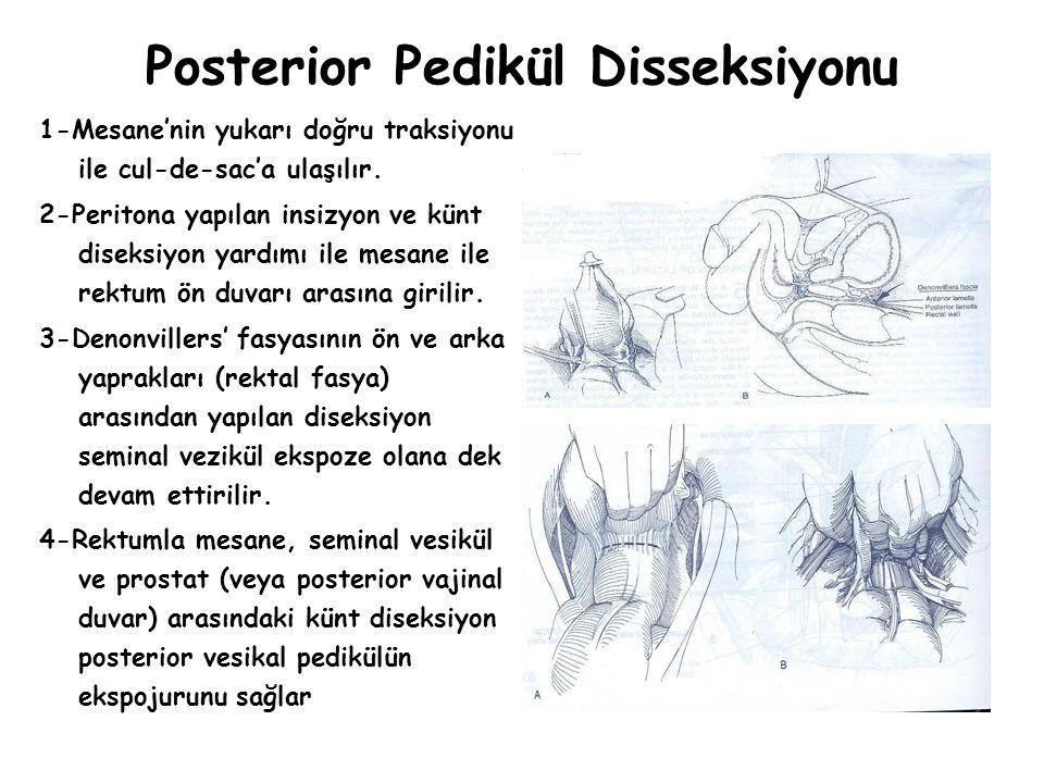 Posterior Pedikül Disseksiyonu