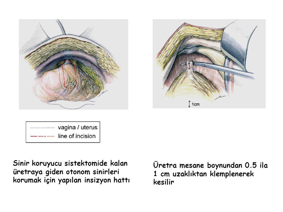 Sinir koruyucu sistektomide kalan üretraya giden otonom sinirleri korumak için yapılan insizyon hattı