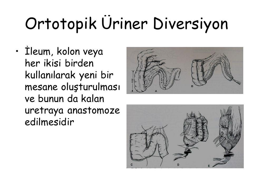 Ortotopik Üriner Diversiyon