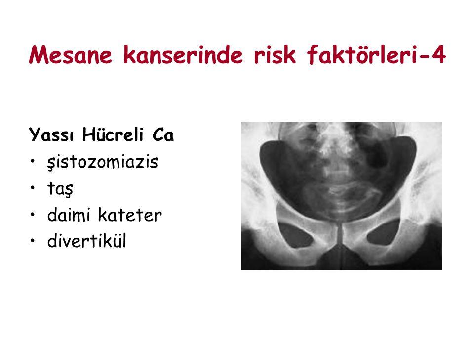 Mesane kanserinde risk faktörleri-4
