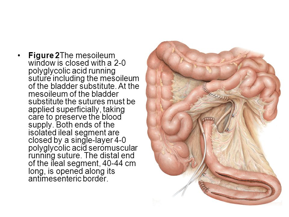 Figure 2The mesoileum window is closed with a 2-0 polyglycolic acid running suture including the mesoileum of the bladder substitute.