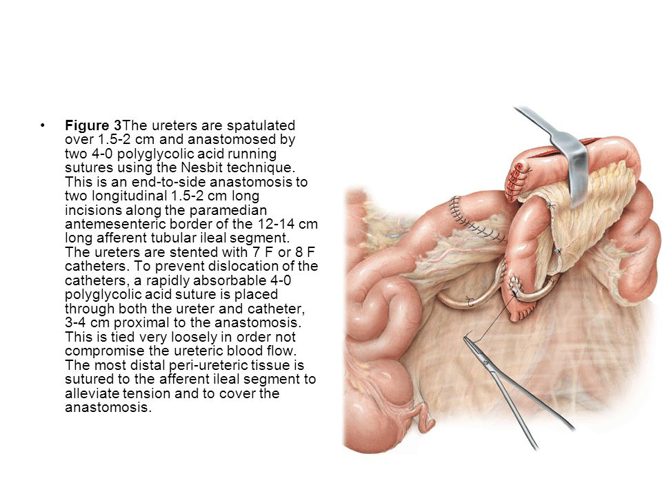 Figure 3The ureters are spatulated over 1
