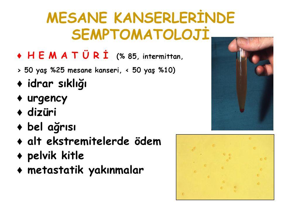 MESANE KANSERLERİNDE SEMPTOMATOLOJİ