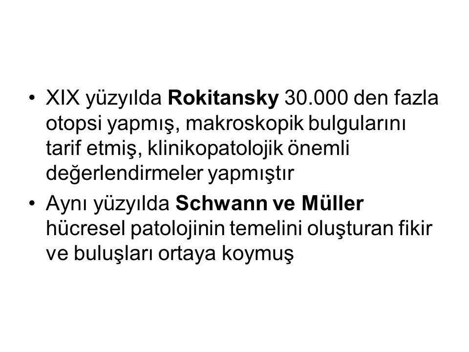 XIX yüzyılda Rokitansky 30