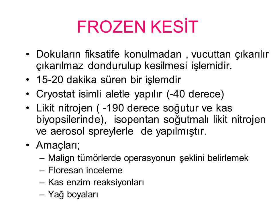 FROZEN KESİT Dokuların fiksatife konulmadan , vucuttan çıkarılır çıkarılmaz dondurulup kesilmesi işlemidir.