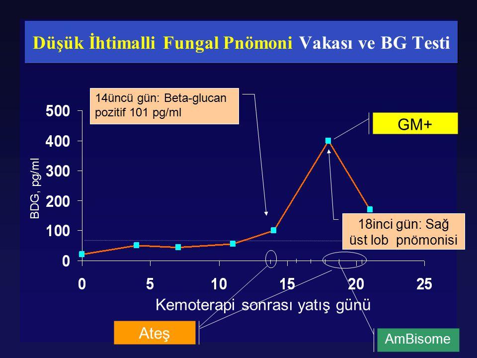 Düşük İhtimalli Fungal Pnömoni Vakası ve BG Testi