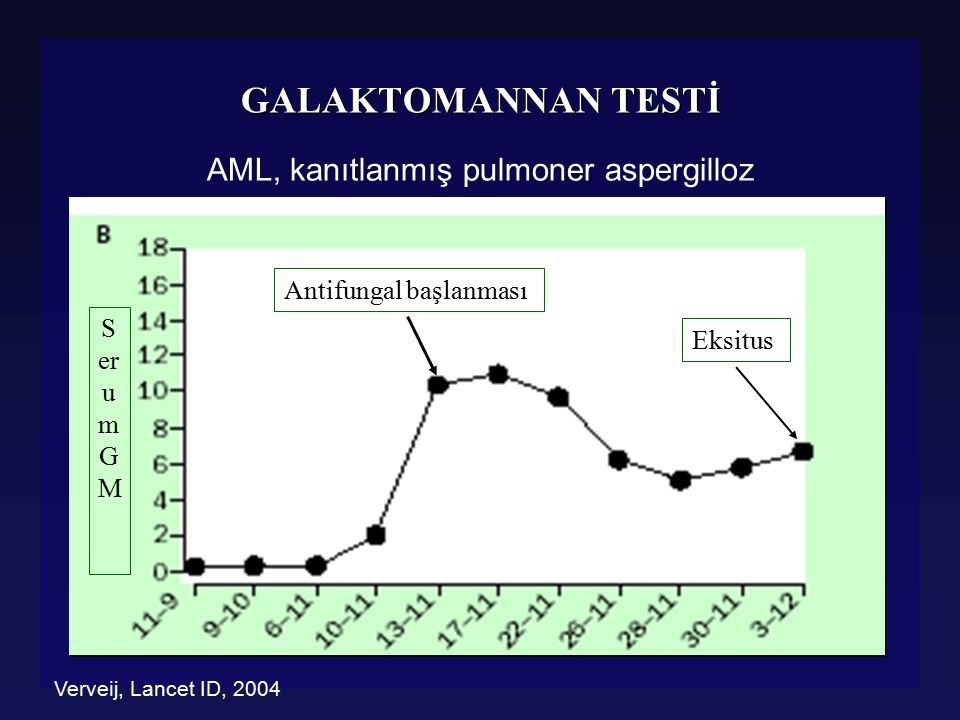 AML, kanıtlanmış pulmoner aspergilloz