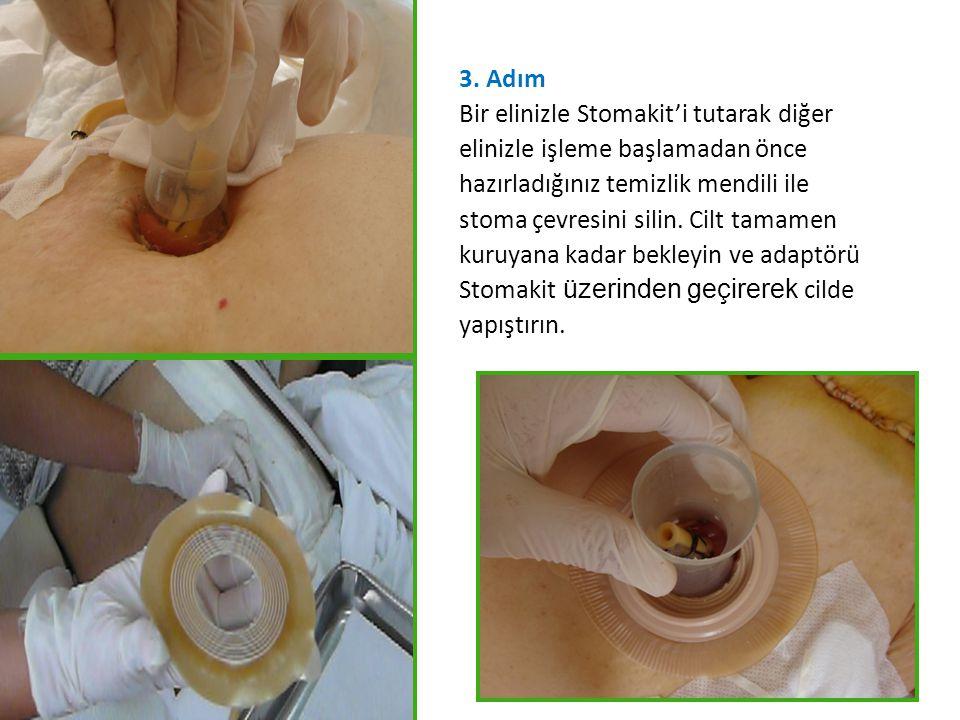 3. Adım Bir elinizle Stomakit'i tutarak diğer. elinizle işleme başlamadan önce. hazırladığınız temizlik mendili ile.