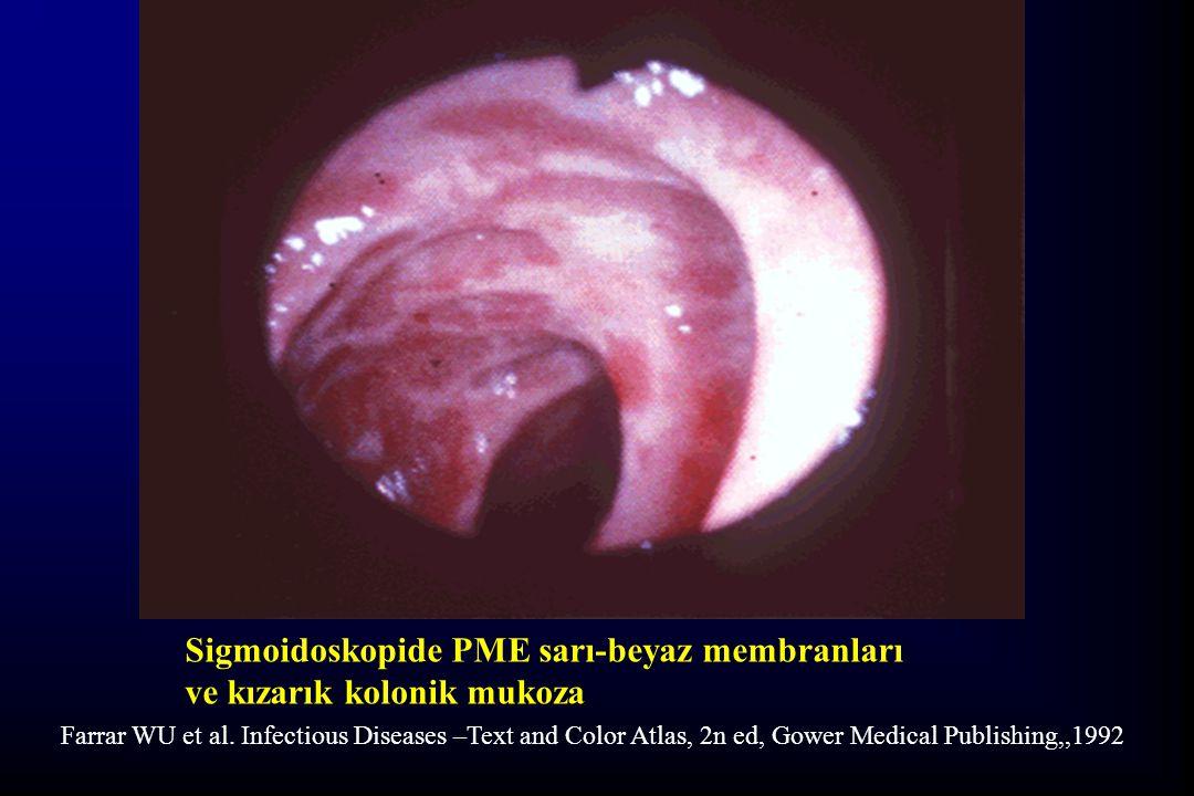 Sigmoidoskopide PME sarı-beyaz membranları ve kızarık kolonik mukoza