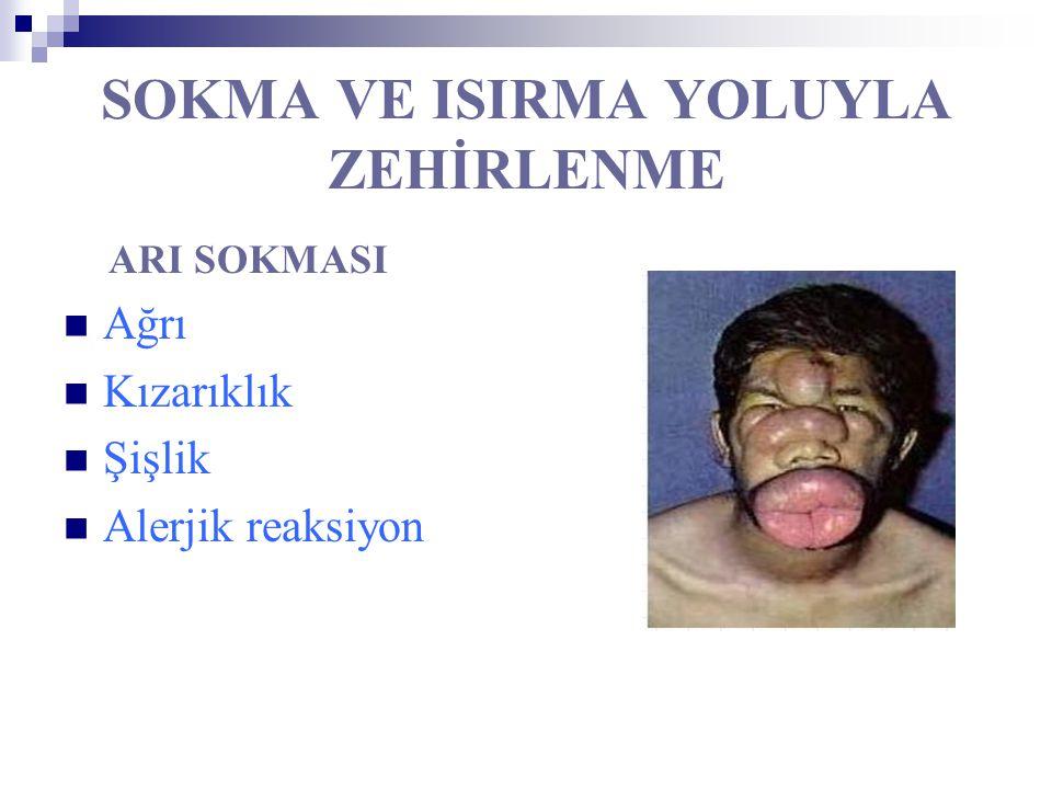 SOKMA VE ISIRMA YOLUYLA ZEHİRLENME