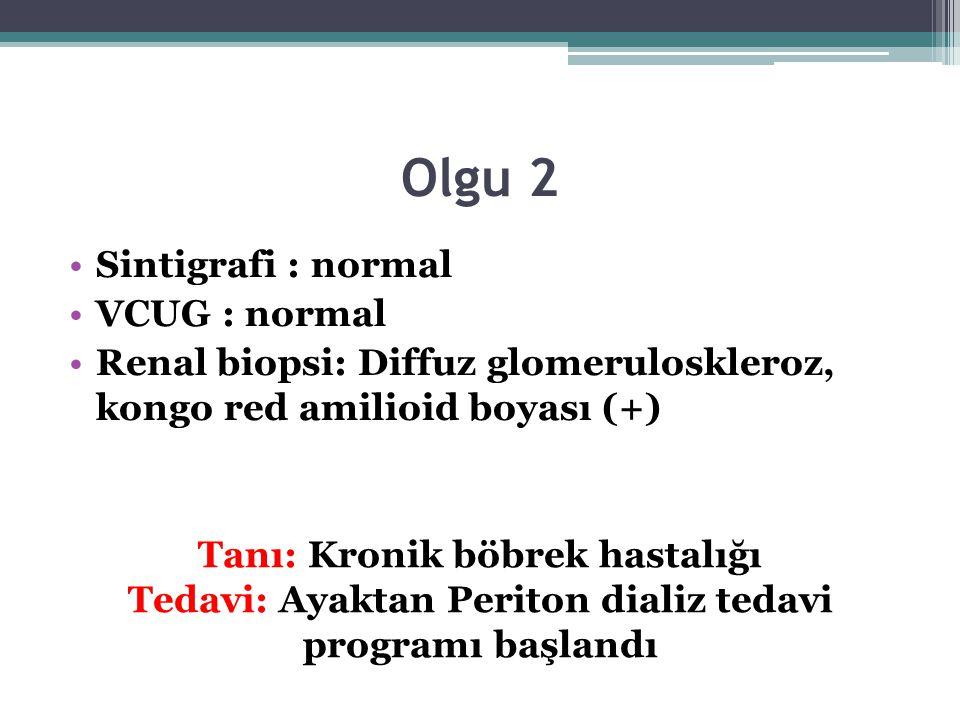 Olgu 2 Sintigrafi : normal VCUG : normal