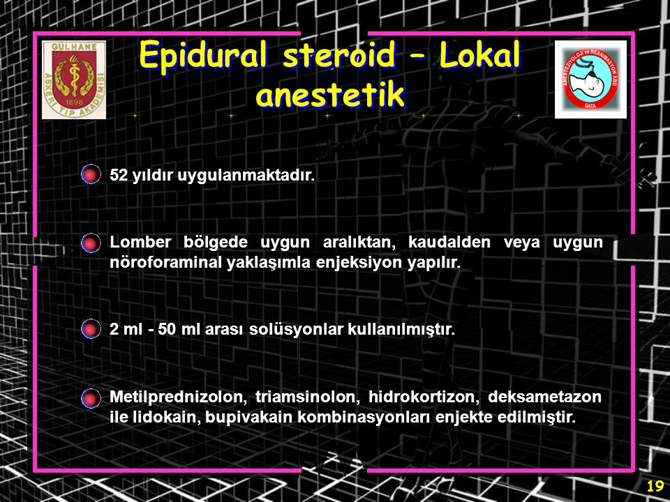 Epidural steroid – Lokal anestetik
