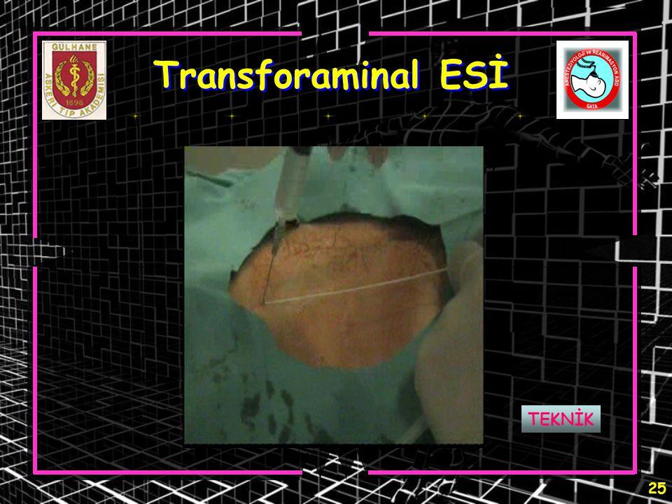 Transforaminal ESİ TEKNİK
