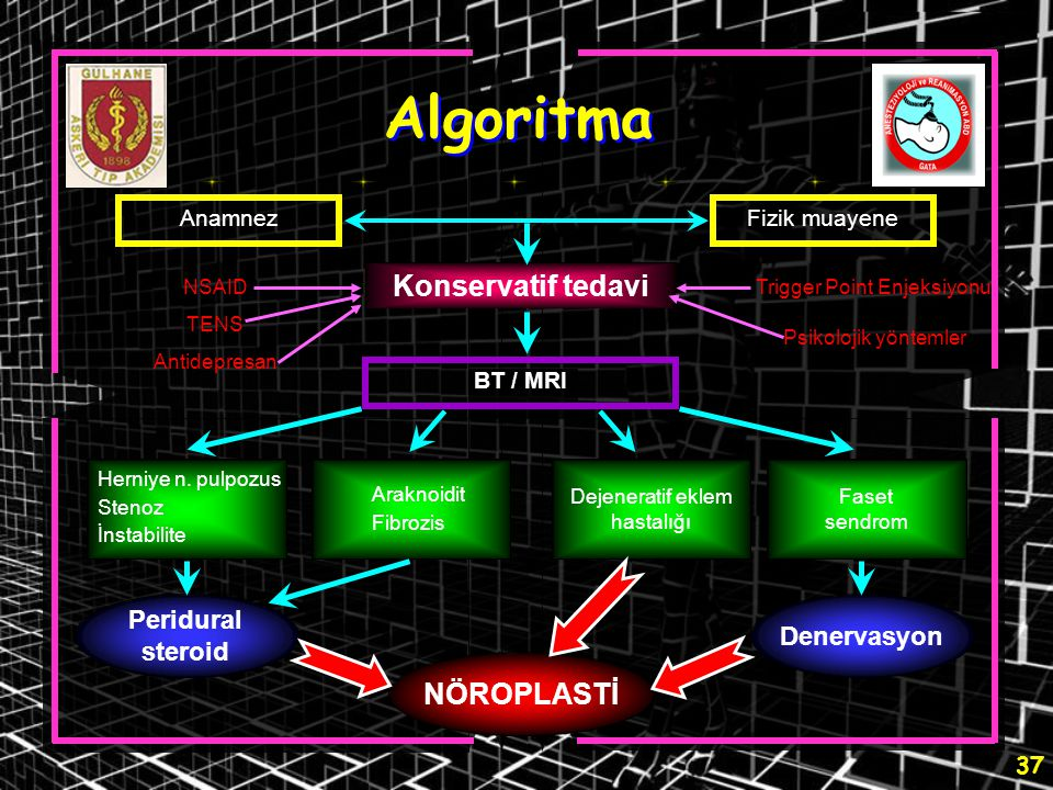 Algoritma Konservatif tedavi NÖROPLASTİ Peridural steroid Denervasyon