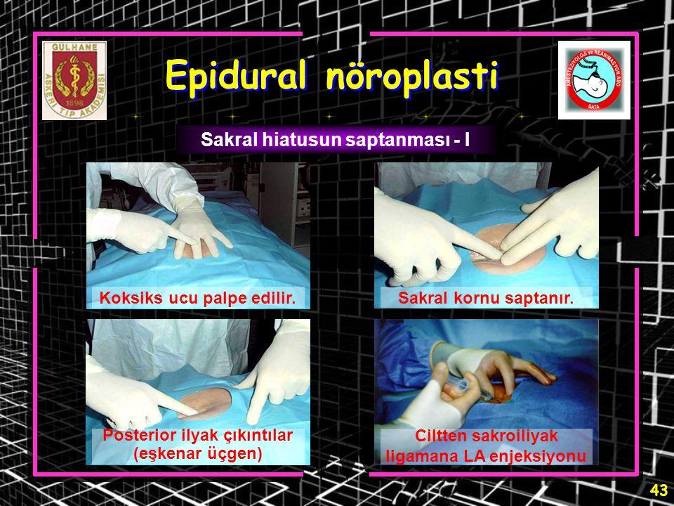 Epidural nöroplasti Sakral hiatusun saptanması - I
