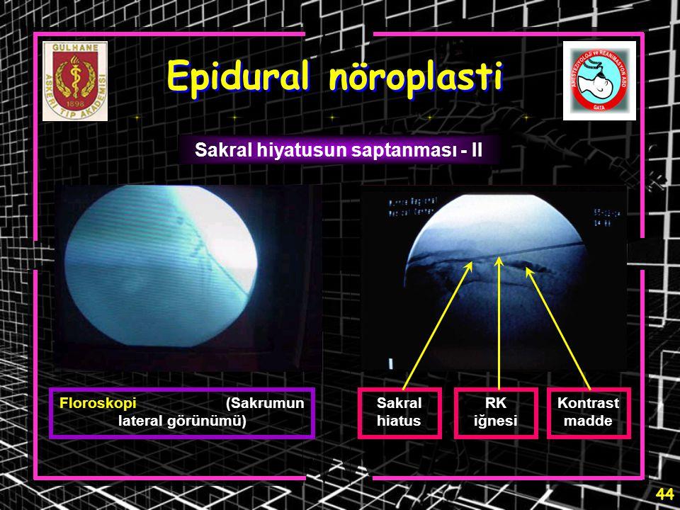 Epidural nöroplasti Sakral hiyatusun saptanması - II