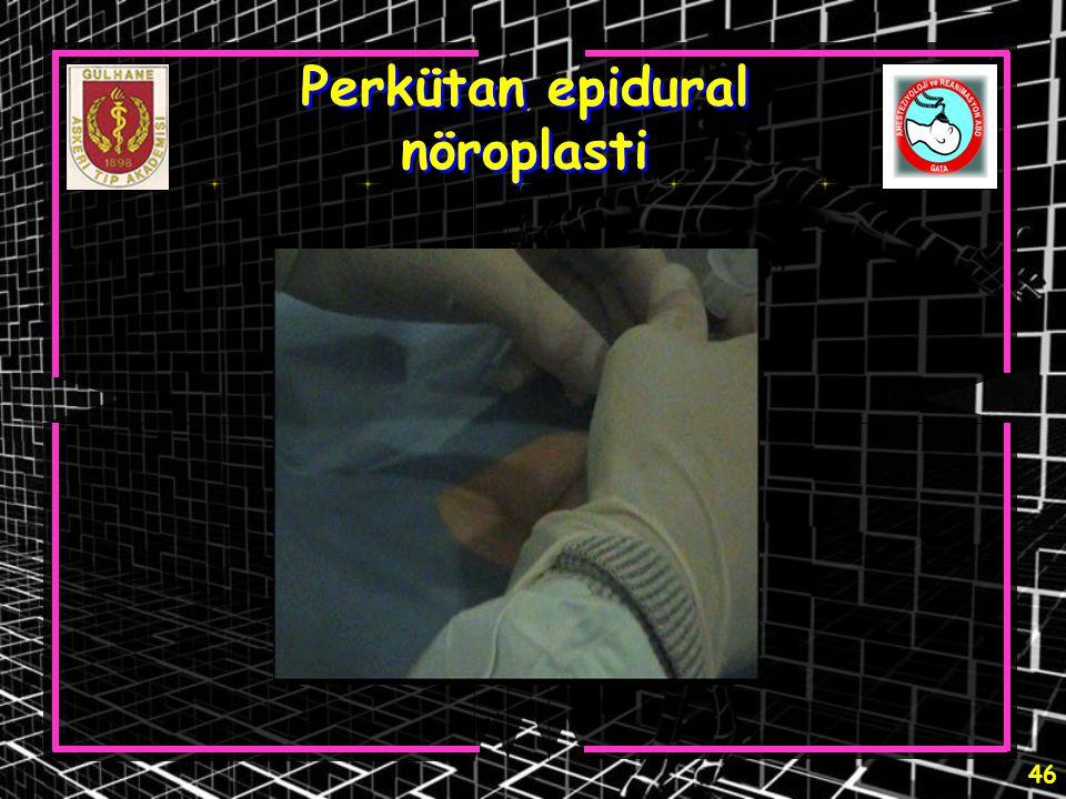 Perkütan epidural nöroplasti
