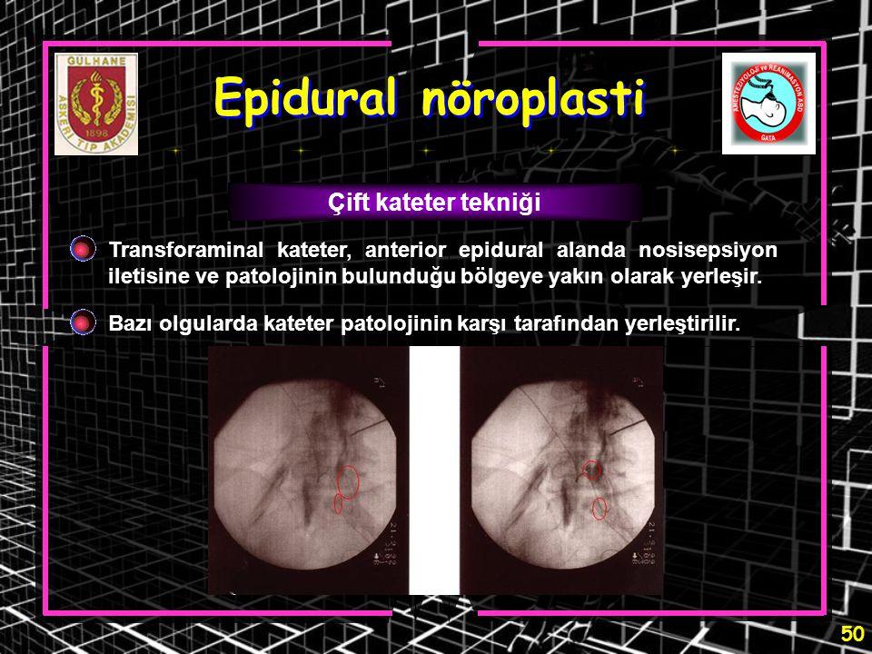 Epidural nöroplasti Çift kateter tekniği