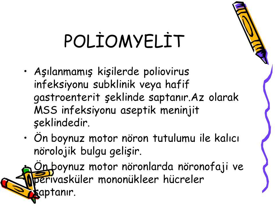 POLİOMYELİT