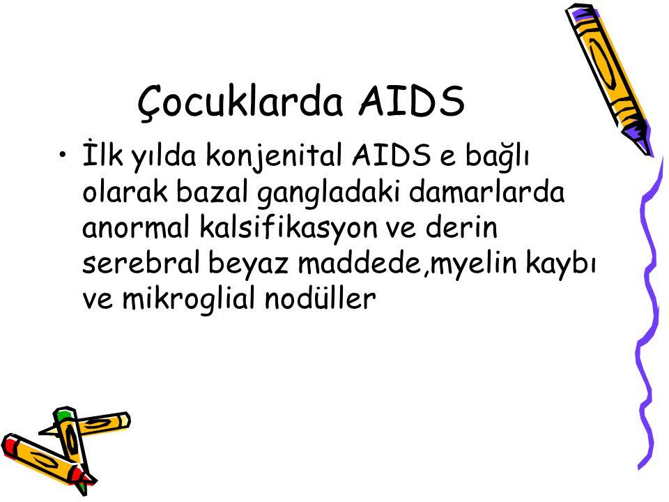 Çocuklarda AIDS