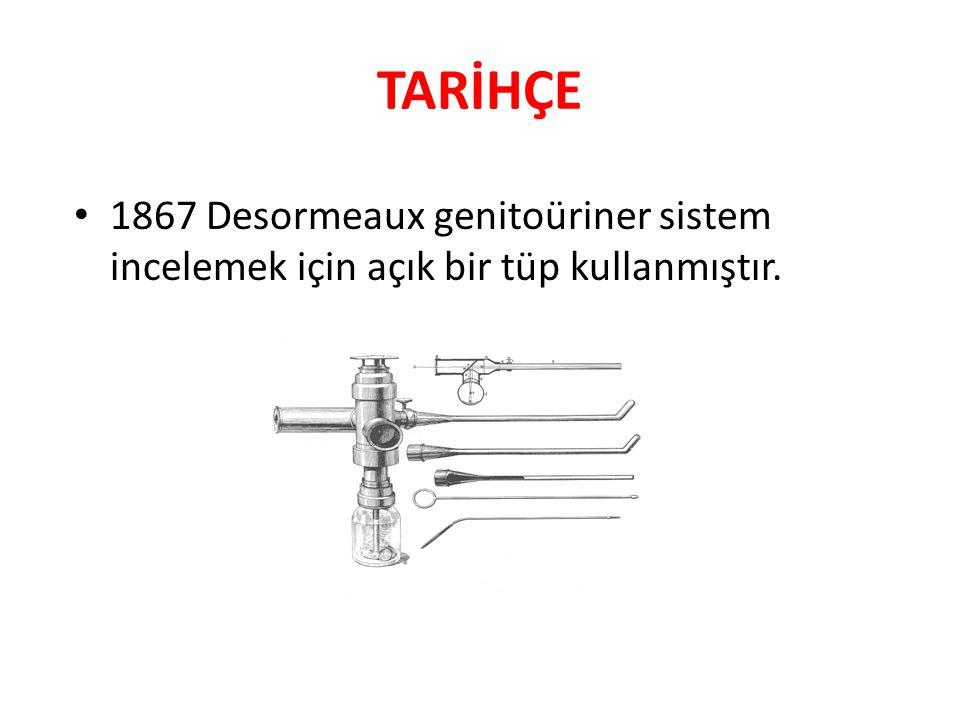 TARİHÇE 1867 Desormeaux genitoüriner sistem incelemek için açık bir tüp kullanmıştır.