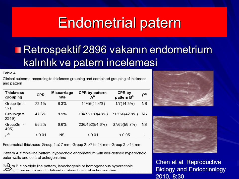 Endometrial patern Retrospektif 2896 vakanın endometrium kalınlık ve patern incelemesi.