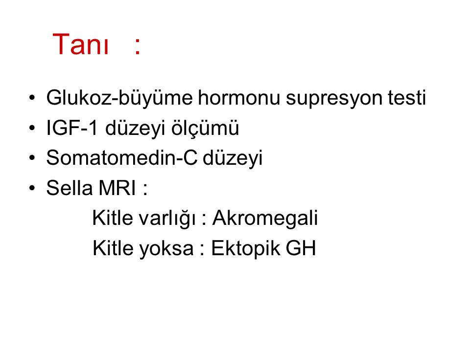 Tanı : Glukoz-büyüme hormonu supresyon testi IGF-1 düzeyi ölçümü