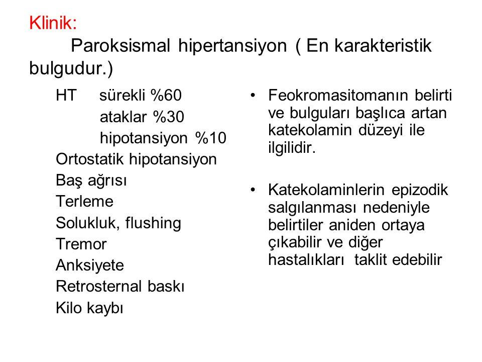 Klinik: Paroksismal hipertansiyon ( En karakteristik bulgudur.)