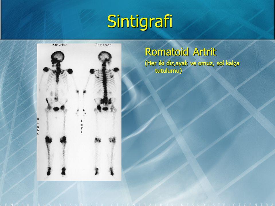 Sintigrafi Romatoid Artrit