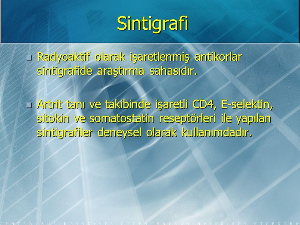 Sintigrafi Radyoaktif olarak işaretlenmiş antikorlar sintigrafide araştırma sahasıdır.