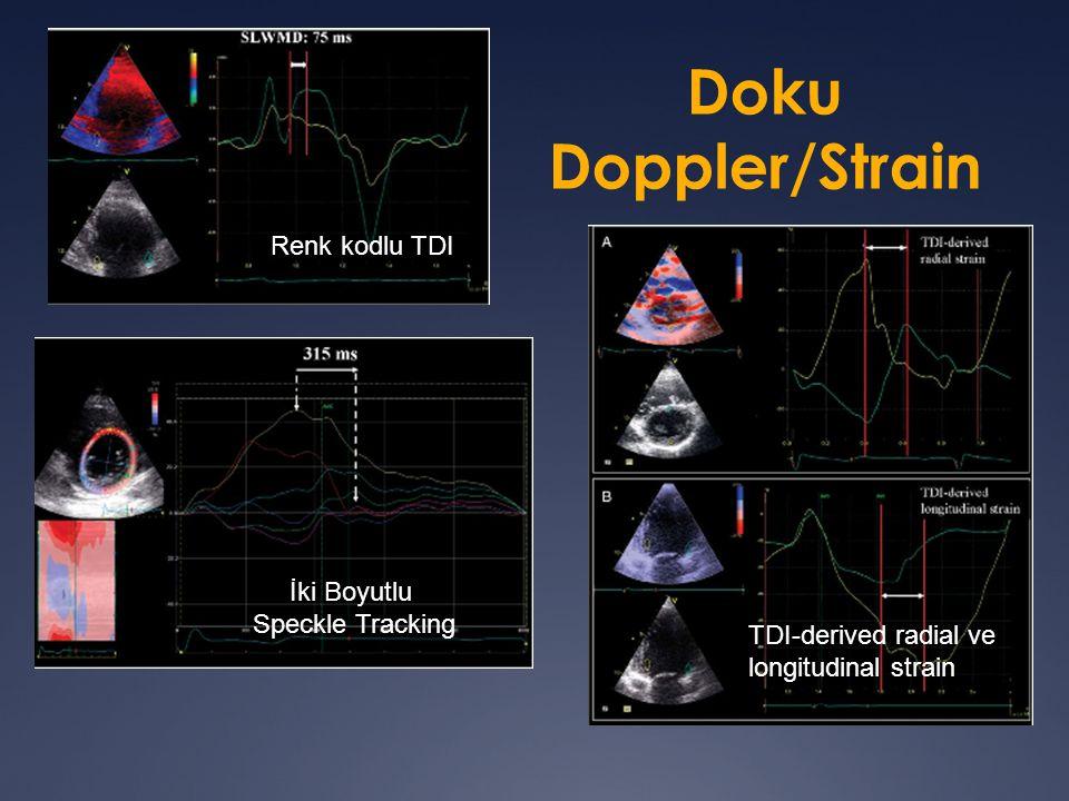 Doku Doppler/Strain Renk kodlu TDI İki Boyutlu Speckle Tracking