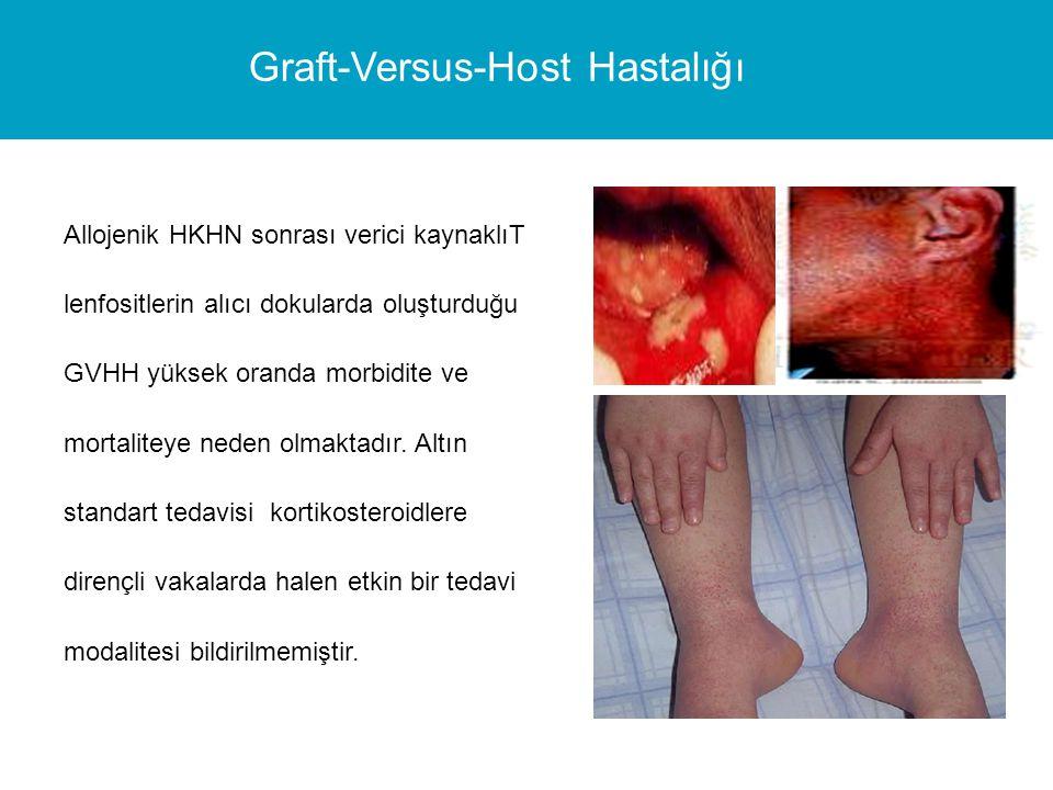 Graft-Versus-Host Hastalığı
