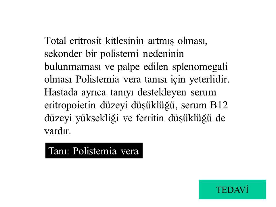 Total eritrosit kitlesinin artmış olması, sekonder bir polistemi nedeninin bulunmaması ve palpe edilen splenomegali olması Polistemia vera tanısı için yeterlidir. Hastada ayrıca tanıyı destekleyen serum eritropoietin düzeyi düşüklüğü, serum B12 düzeyi yüksekliği ve ferritin düşüklüğü de vardır.