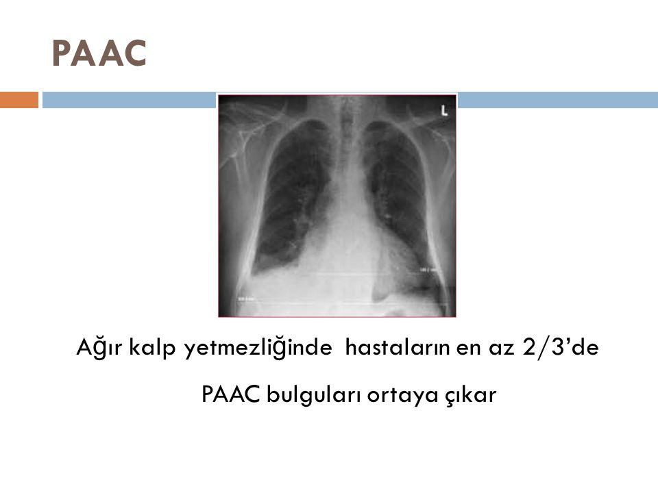 PAAC Ağır kalp yetmezliğinde hastaların en az 2/3'de PAAC bulguları ortaya çıkar