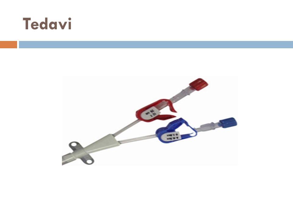 Anürik hastalarda hemodializ alternatif seçenektir