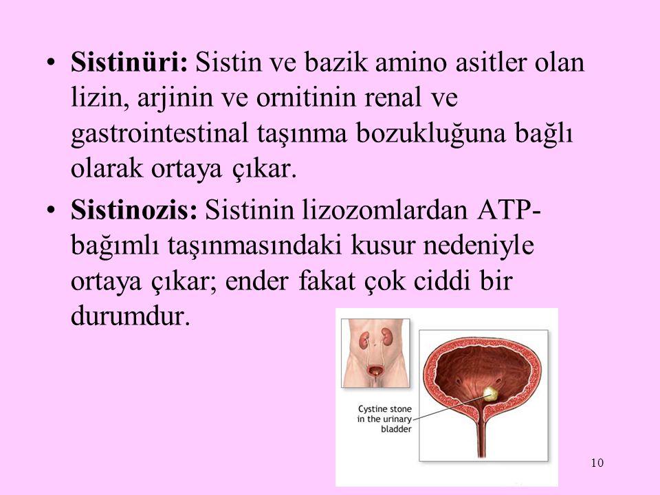Sistinüri: Sistin ve bazik amino asitler olan lizin, arjinin ve ornitinin renal ve gastrointestinal taşınma bozukluğuna bağlı olarak ortaya çıkar.