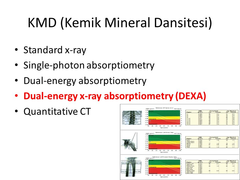 KMD (Kemik Mineral Dansitesi)
