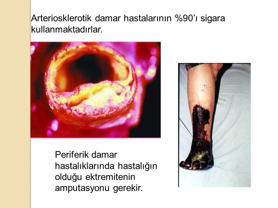 Arteriosklerotik damar hastalarının %90'ı sigara kullanmaktadırlar.