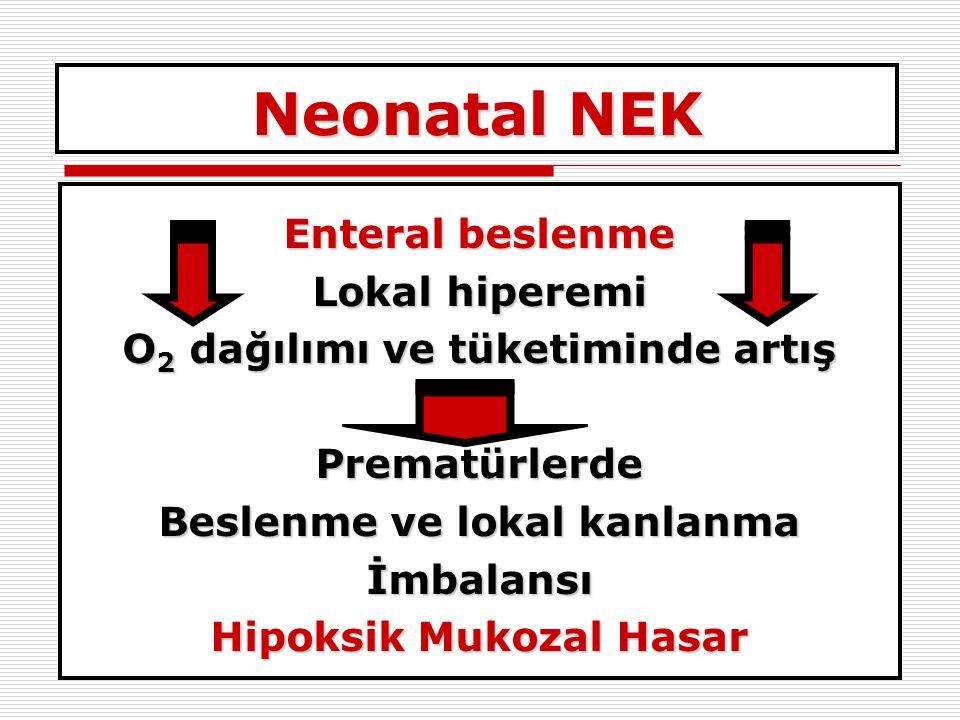Neonatal NEK Enteral beslenme Lokal hiperemi