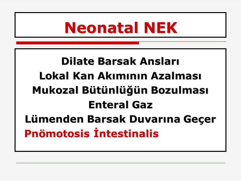 Neonatal NEK Dilate Barsak Ansları Lokal Kan Akımının Azalması