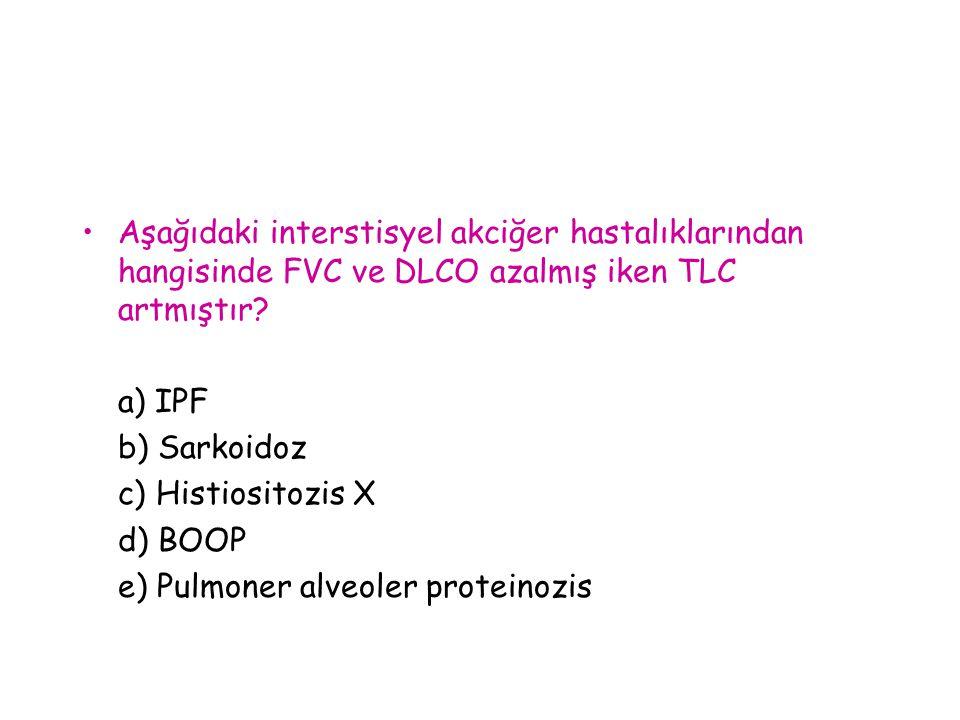 Aşağıdaki interstisyel akciğer hastalıklarından hangisinde FVC ve DLCO azalmış iken TLC artmıştır