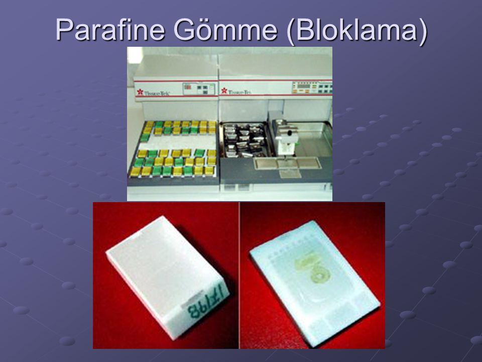 Parafine Gömme (Bloklama)